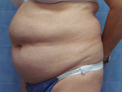 Before-ABDOMINOPLASTIA