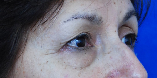 Before-BLEFAROPLASTIA