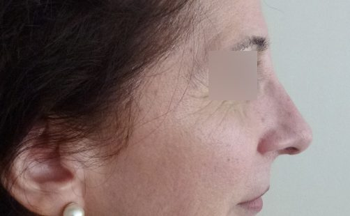 After- RINOPLASTIA
