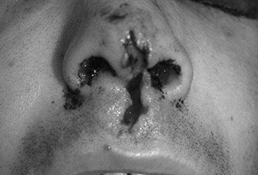 Before-TRAUMA NASAL