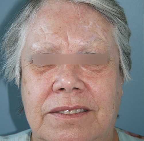 After-TRAUMA FACIAL