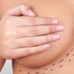 Las mamas de tamaño excesivo pueden dañar tu espalda y… ¡también tu vida sexual!