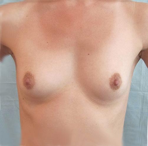 Mamoplastía de aumento, Wam Center