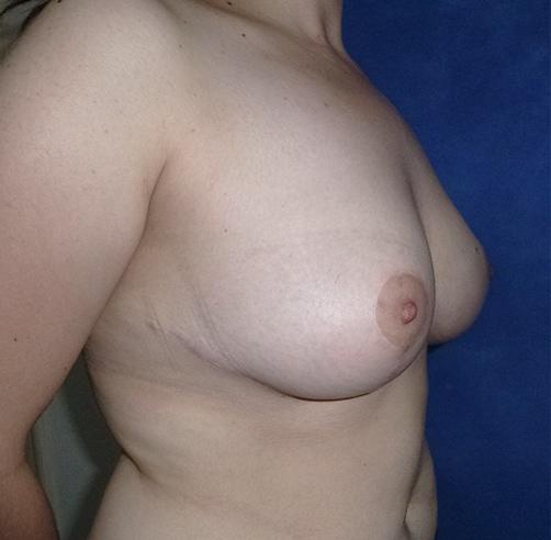 Mamoplastía de reducción, Wam Center